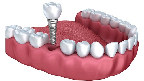 Complete guide on dental implants cost in australia!