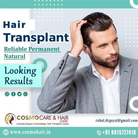 Best hair transplant clinic in chandigarh