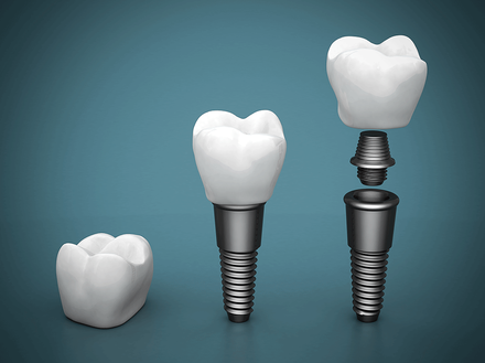 Dental implants professionals - high quality and affordable dental implants melbourne