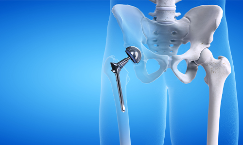 Revision for hip replacement in tasmania
